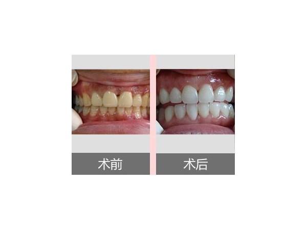 洗牙会让牙缝变大吗?牙卫士带您走出误区!