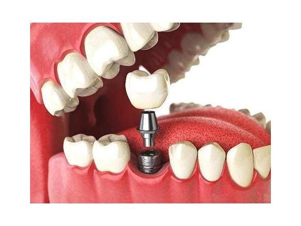 """种植牙原来是这样""""种""""出来的!"""