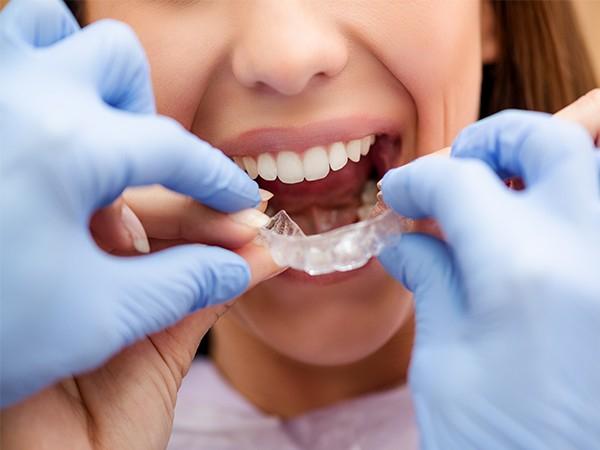 """不做""""钢牙妹""""!隐形牙齿矫正让您悄然变美!"""