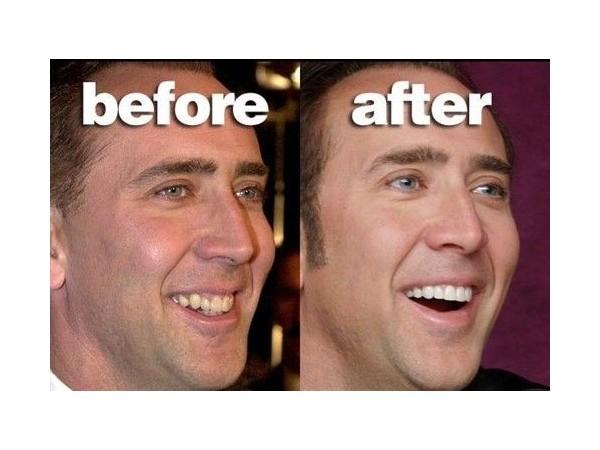 成年人就不能做牙齿矫正了?牙卫士打消您的顾虑