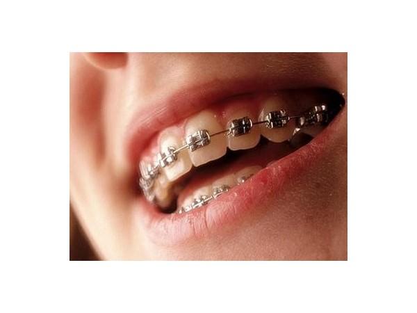 牙周病影响牙齿矫正吗?牙卫士专家为您解答