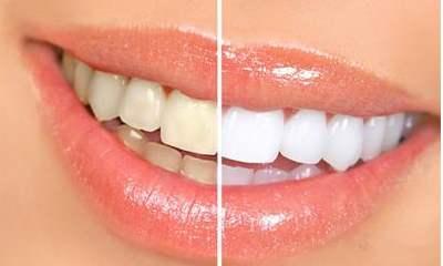 牙卫士牙齿美白