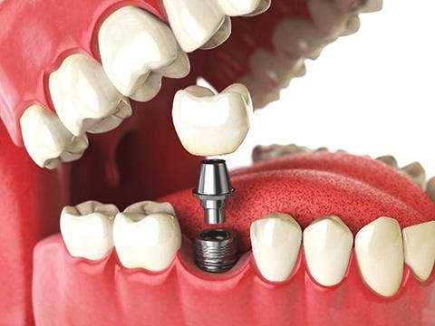 柳州牙卫士种植牙