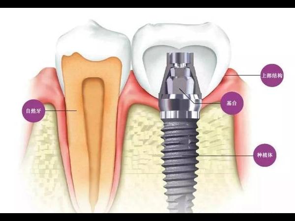 关于种植牙的十万个为什么,这篇文章帮你解开所有疑问