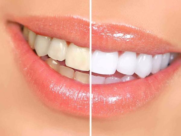 在柳州做牙齿美白选哪家好?
