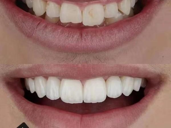 瓷贴面牙齿美白,让你微笑闪耀每一天~