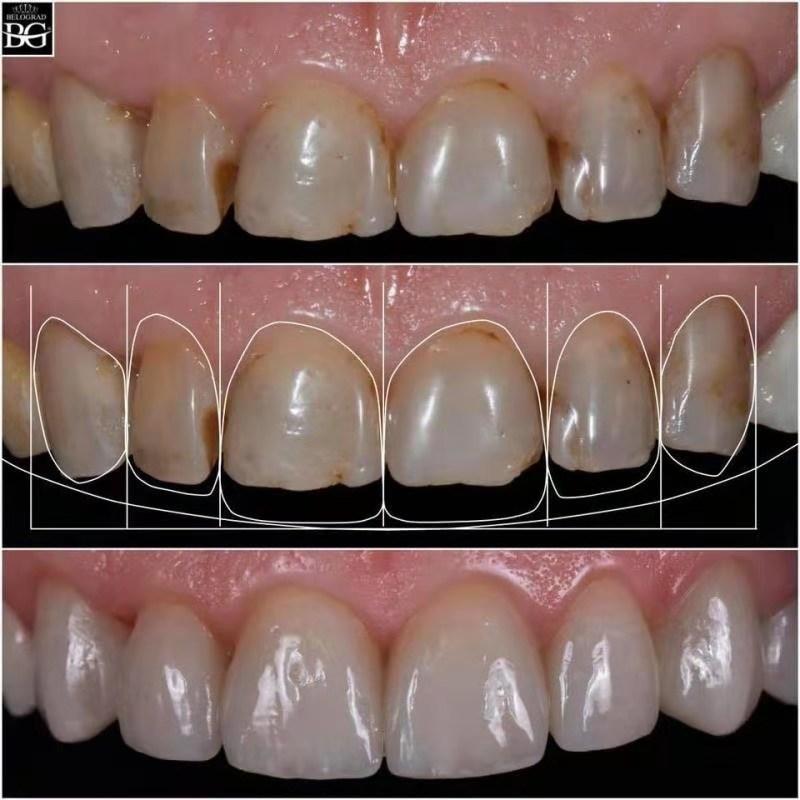瓷贴面牙齿美白