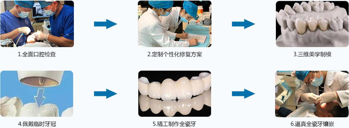 牙齿修复流程