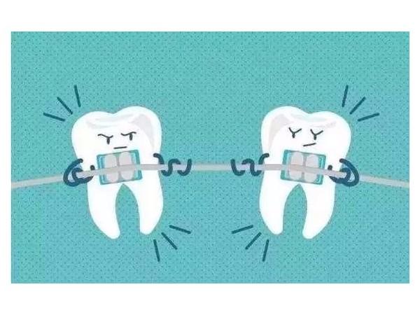 担心矫正后反弹?牙卫士专家打消您的疑虑