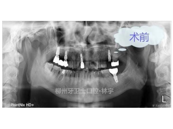专业种植牙修复哪家强?认准柳州牙卫士口腔
