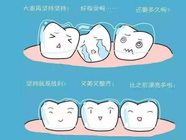 牙齿矫正急不得,影响矫正时间的因素您了解吗?