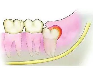 关于智齿的十大灵魂拷问——柳州牙卫士