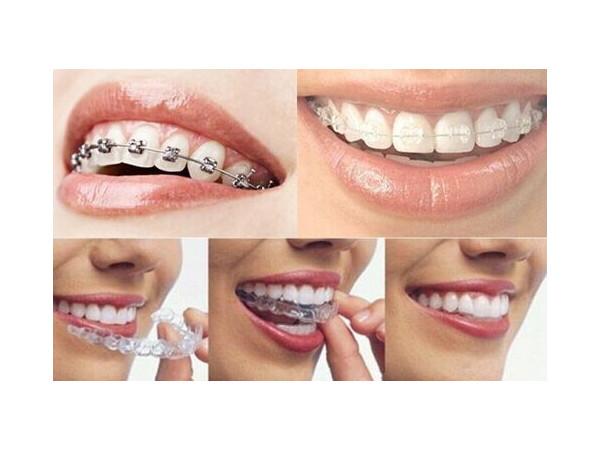牙齿矫正的牙套是如何安装的?心痒痒的想知道就点进来呗