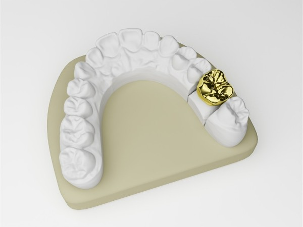 补牙材料有哪些呢?——柳州牙卫士