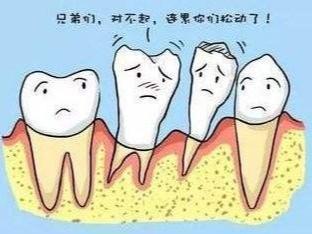 牙周炎是什么?看看牙周炎的六个症状表现