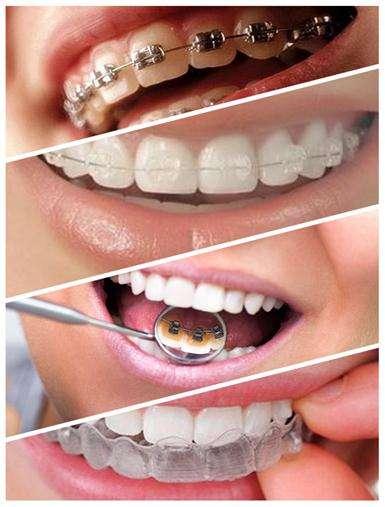 柳州牙齿矫正