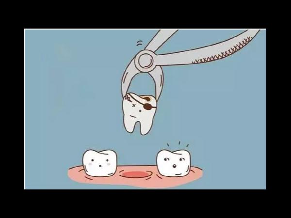 面对整牙,哪些问题是你特别担心的?——柳州牙卫士