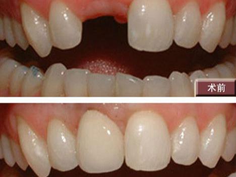 为什么缺牙要选种植牙?——柳州牙卫士