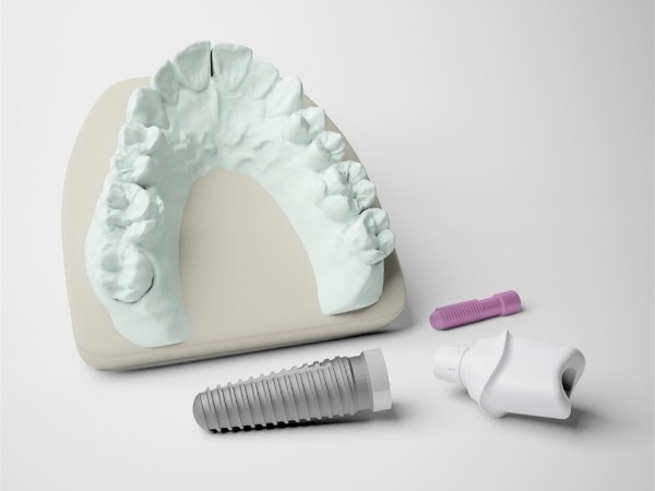 牙齿是缺几颗就种几颗么?——柳州牙卫士