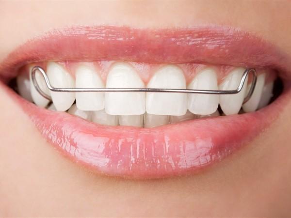 牙齿缺失可引起以下5种后果——柳州牙卫士
