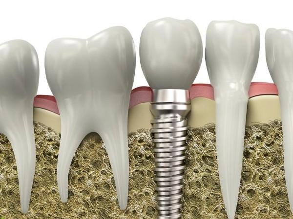 种植牙能有多坚固?说出来吓你一跳