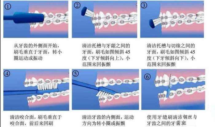 牙卫士牙齿矫正