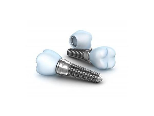 想要了解全口种植牙的使用寿命吗?戳这里看个明白!