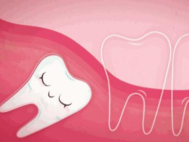 智齿为什么会以各种姿势出现?——柳州牙卫士