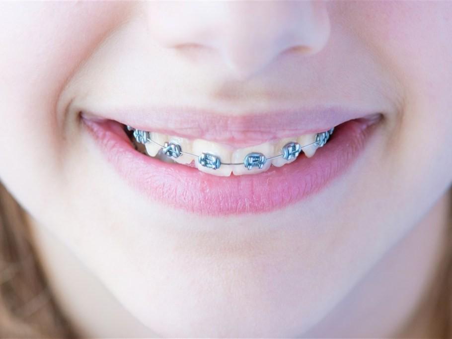 """牙套上的""""钢丝""""是什么——柳州牙卫士"""