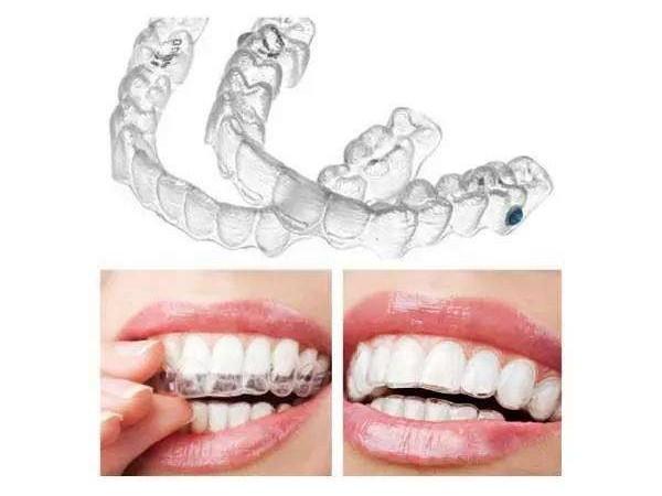 """矫牙也能美美的~隐形牙套让您摆脱""""钢牙妹""""!"""