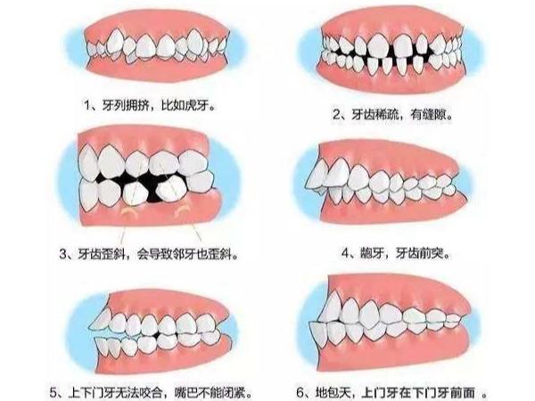 矫正分轻重,看看你的牙是否也在其中~