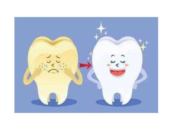 牙卫士解开您对洗牙的误解