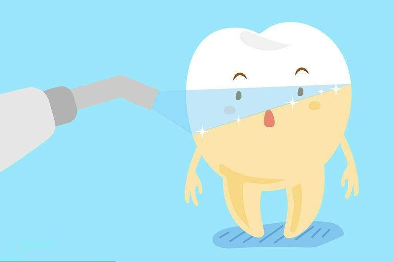 柳州牙齿美白