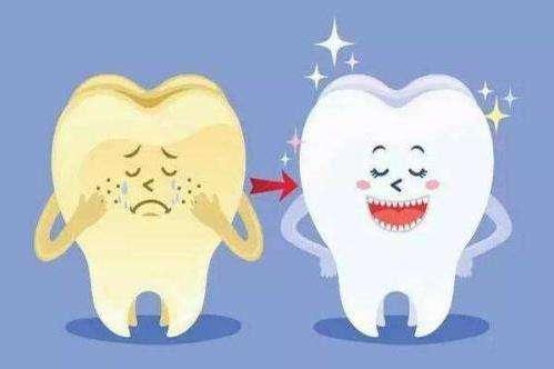 牙卫士冷光牙齿美白