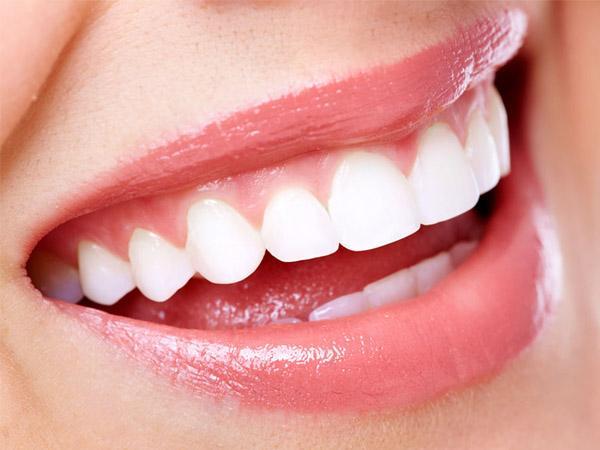 你的车今天洗了么?你的牙呢?——柳州牙卫士