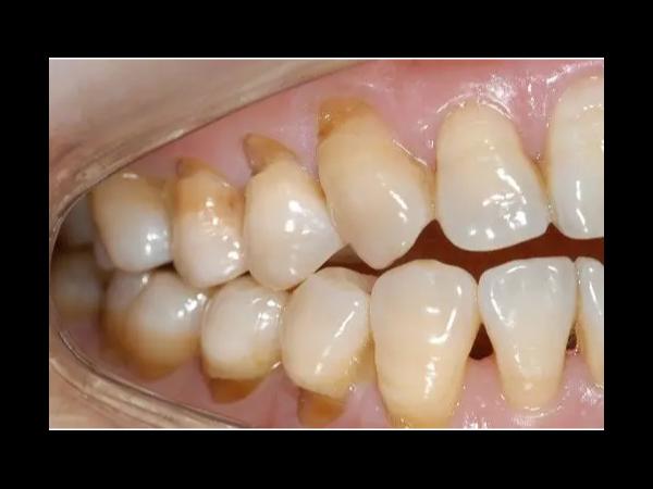 快住手,牙齿要刷断了!!!——柳州牙卫士