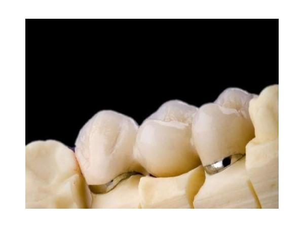 何为钴铬烤瓷牙?—柳州牙卫士