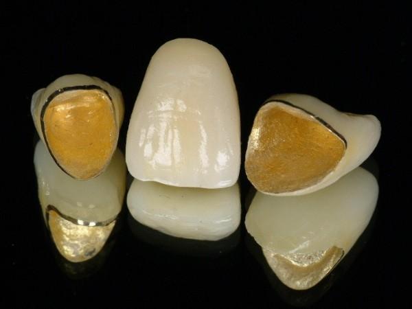 贵金属烤瓷牙的属性与特点——柳州牙卫士
