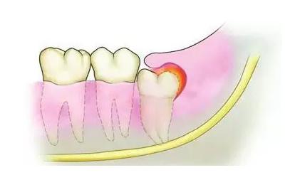 近中阻生牙