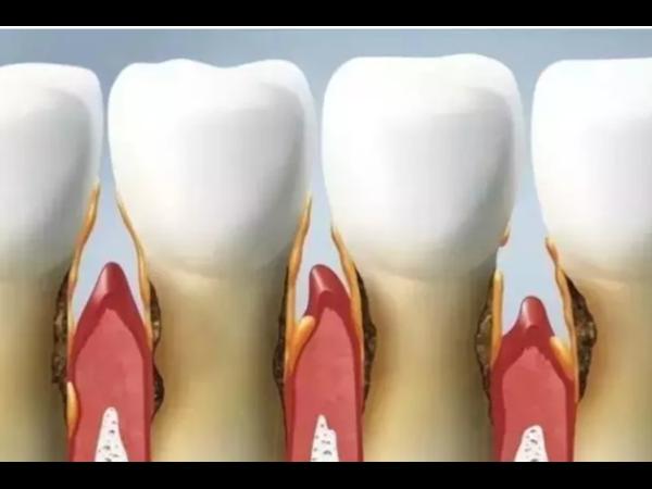 过年了,吃吃喝喝最怕塞牙缝!牙齿矫正轻松解决您的烦恼!