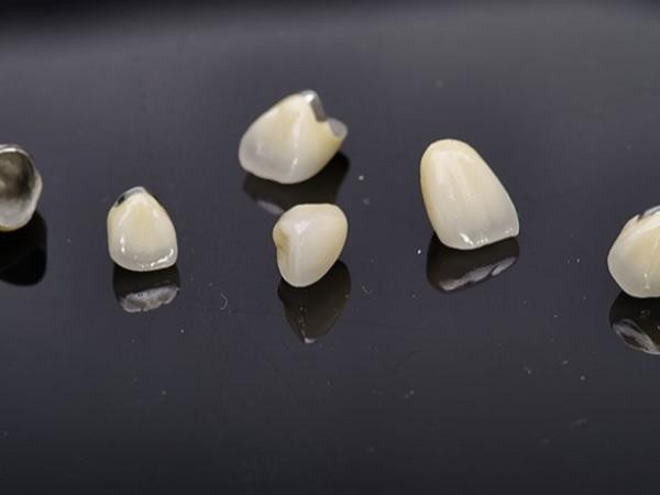 二氧化锆全瓷牙PK金属烤瓷牙——柳州牙卫士