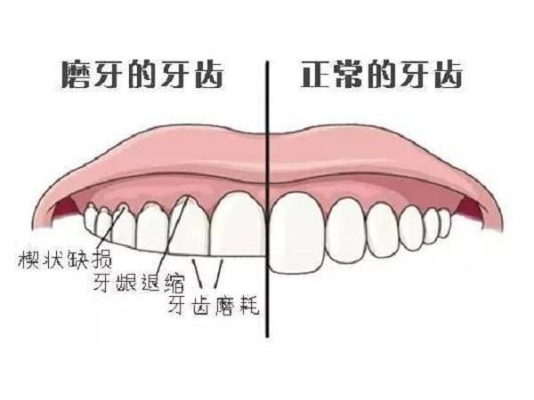 有些人为什么会磨牙?——柳州牙卫士