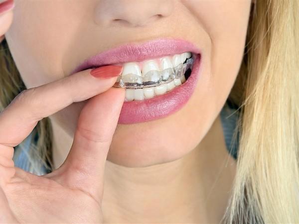 你对牙齿矫正的刻板印象也是这样的吗?
