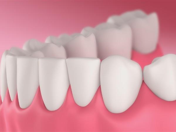 是什么影响着全口义齿的固位?——柳州牙卫士