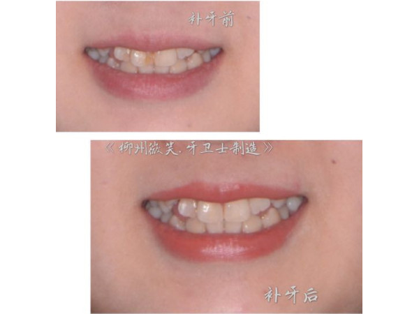 先补牙再矫正~【美学数脂补牙】灿烂笑容新起点!